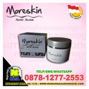 moreskin anti acne